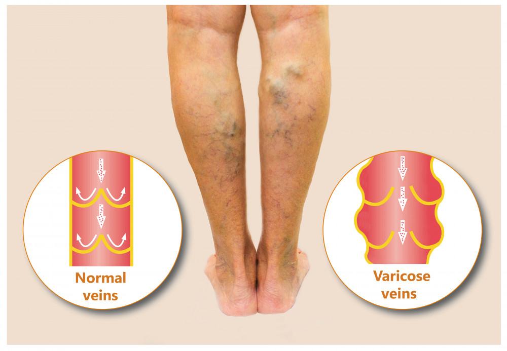 fürdők sóval a visszér ellen a varikózis erősen fáj az egyik lábával