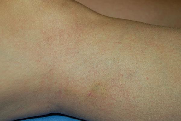 visszér a terhes nőknél torna pontok a visszeres lábakon