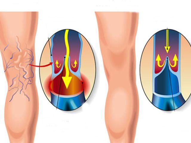 visszér szérum kezelés