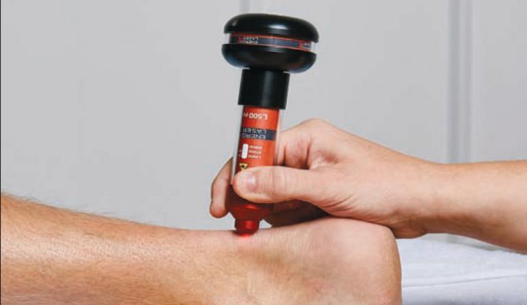 a visszér lézeres kezelése neftekamskban hatékony orvosság visszeres ödéma ellen