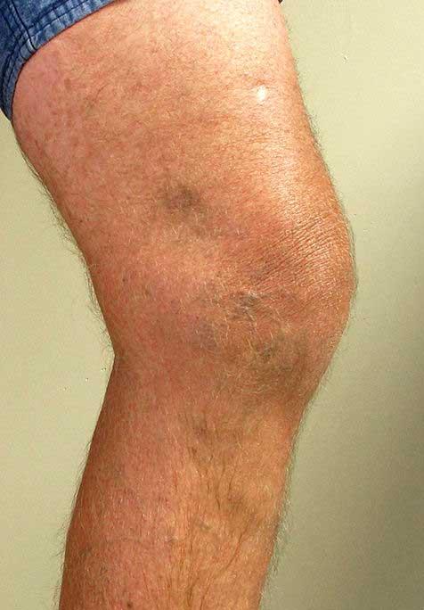 enyhíti a fájdalmat a visszeres lábakon lehet-e visszér a mellkason