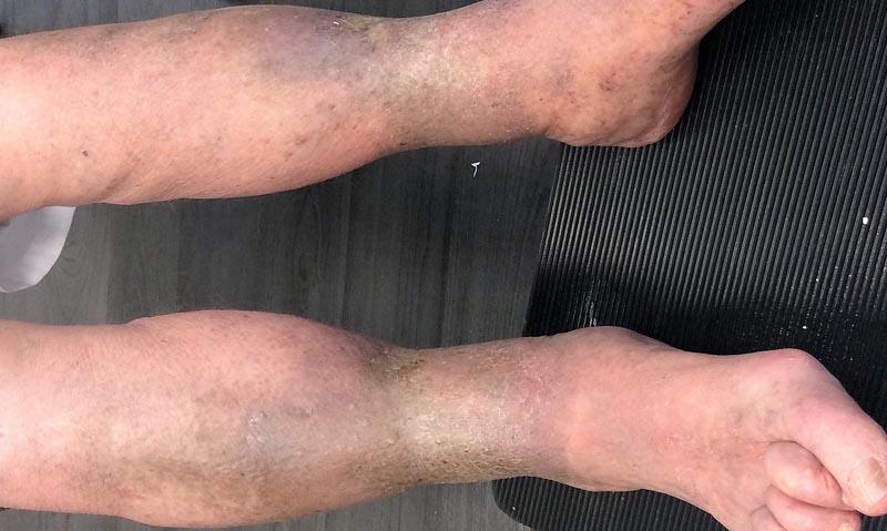 a visszér visszér kezelése az alsó lábszáron