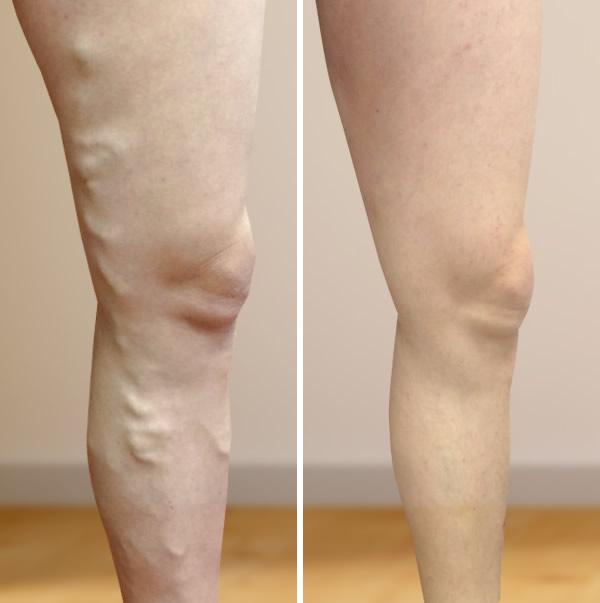 ödéma a lábakon visszeres kezeléssel