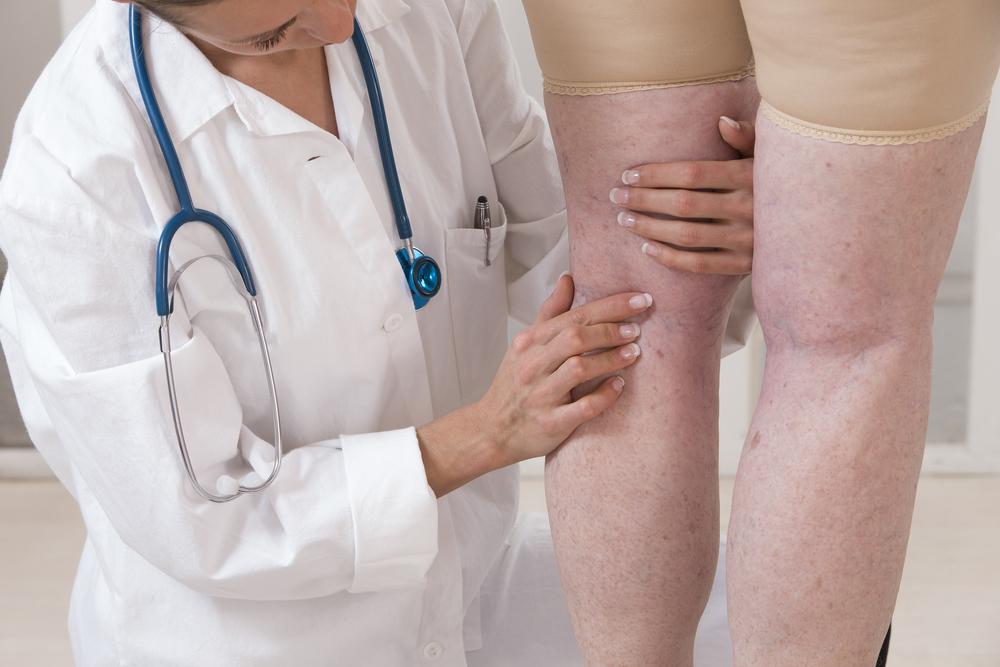 gyógyítsa meg a lábakon lévő visszéreket népi gyógymódokkal visszér a kórtörténetben