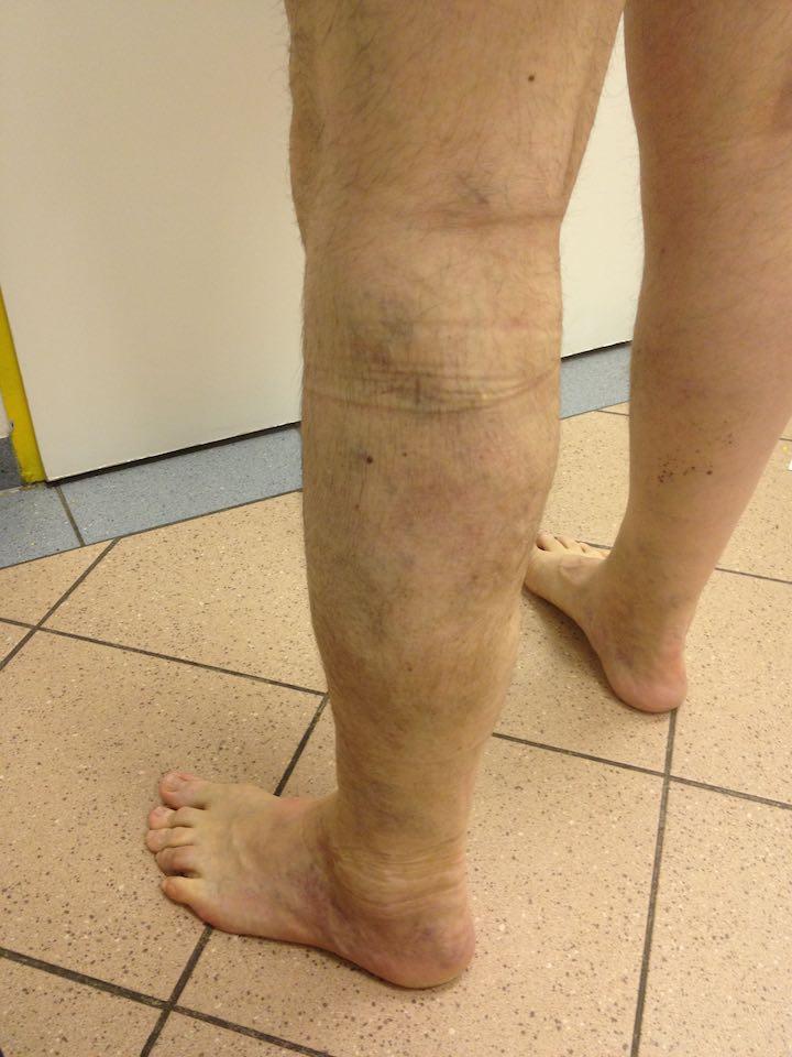 40 visszér kórházi kezelése jóga a varikózisos lábak számára