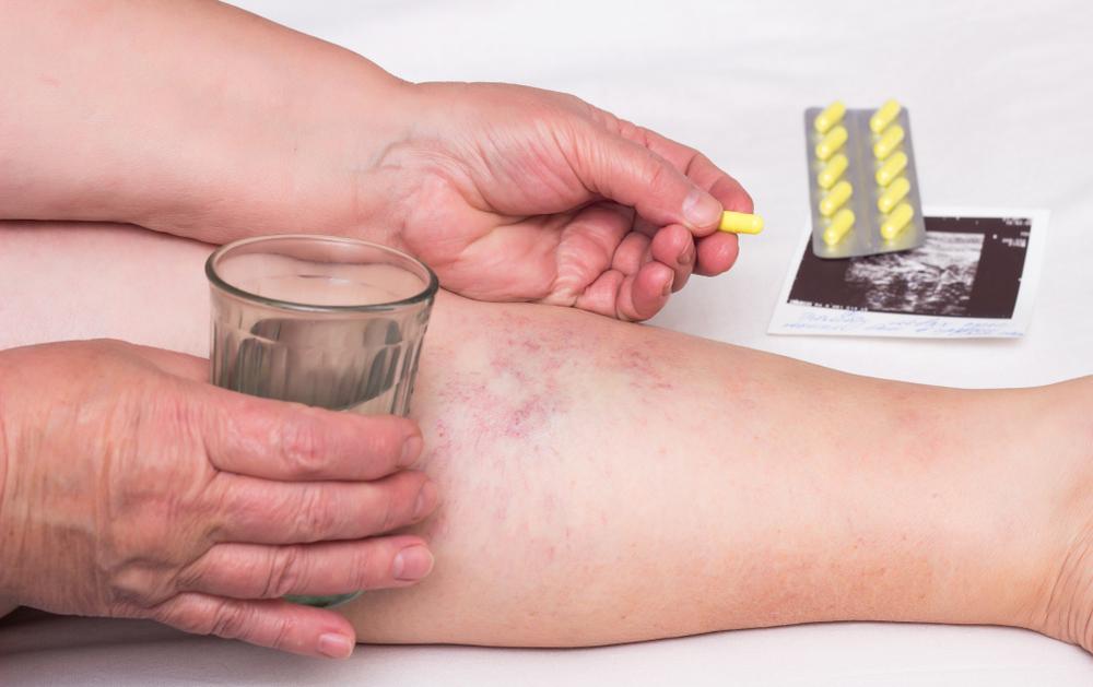 visszér tünetek alternatív kezelési módszerek
