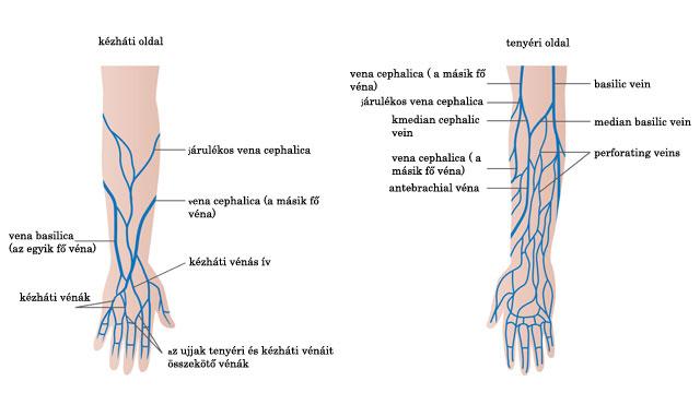 lábvénás kezelés visszér visszér a testépítőknél okoz