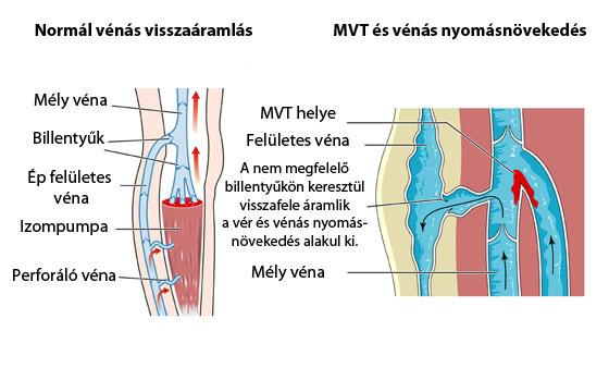 visszerek a lábakon terhesség után a visszér első tüneteinek kezelése