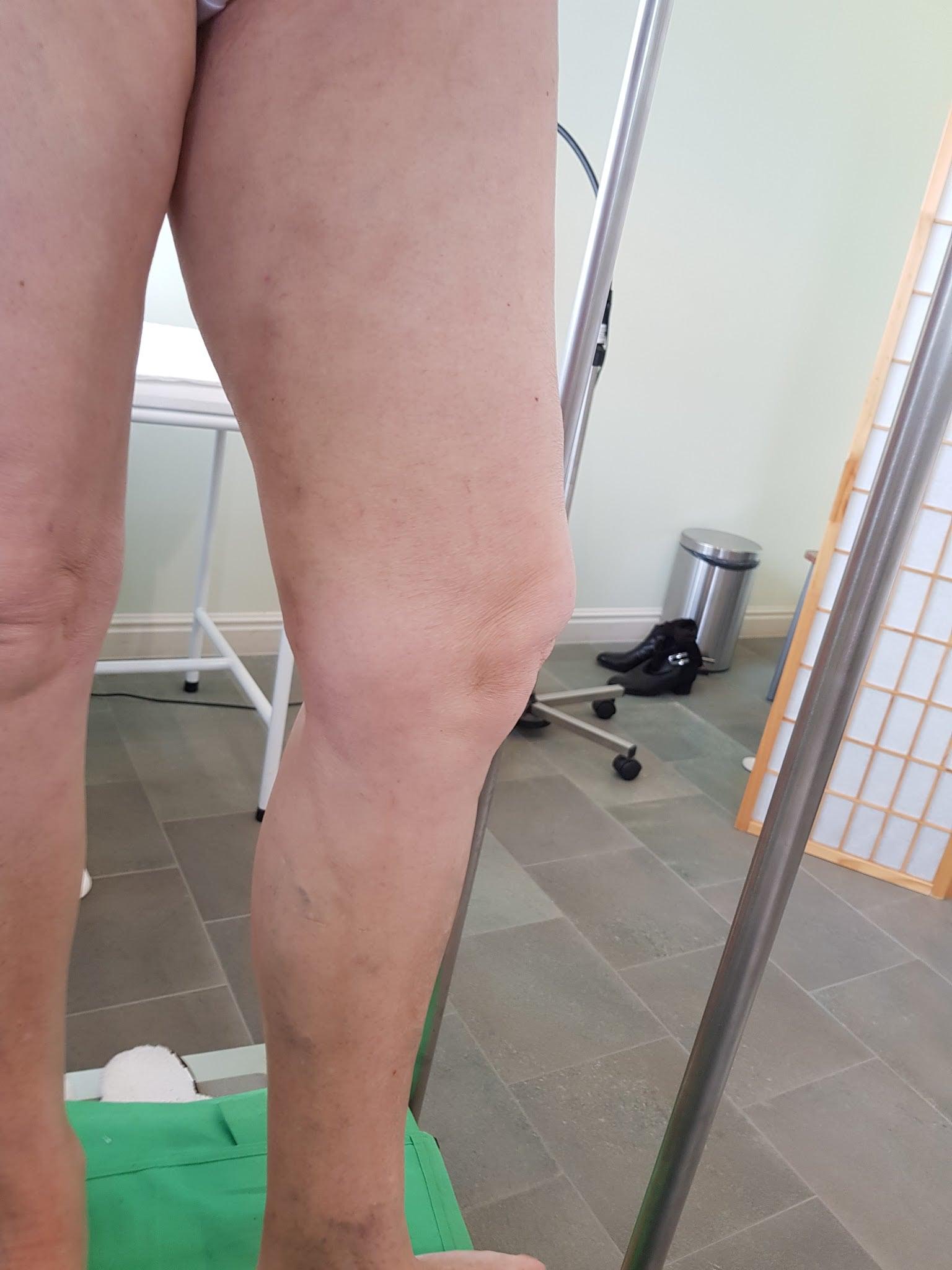 visszérműtét fotó előtt és után az alsó lábszár és a comb visszér