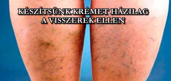 a lábak varikózisának érrendszeri kezelése amit a visszér műtét után írnak fel