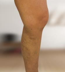 lehet-e inni a femostont visszérrel kenőcsök visszerek a lábak listáján