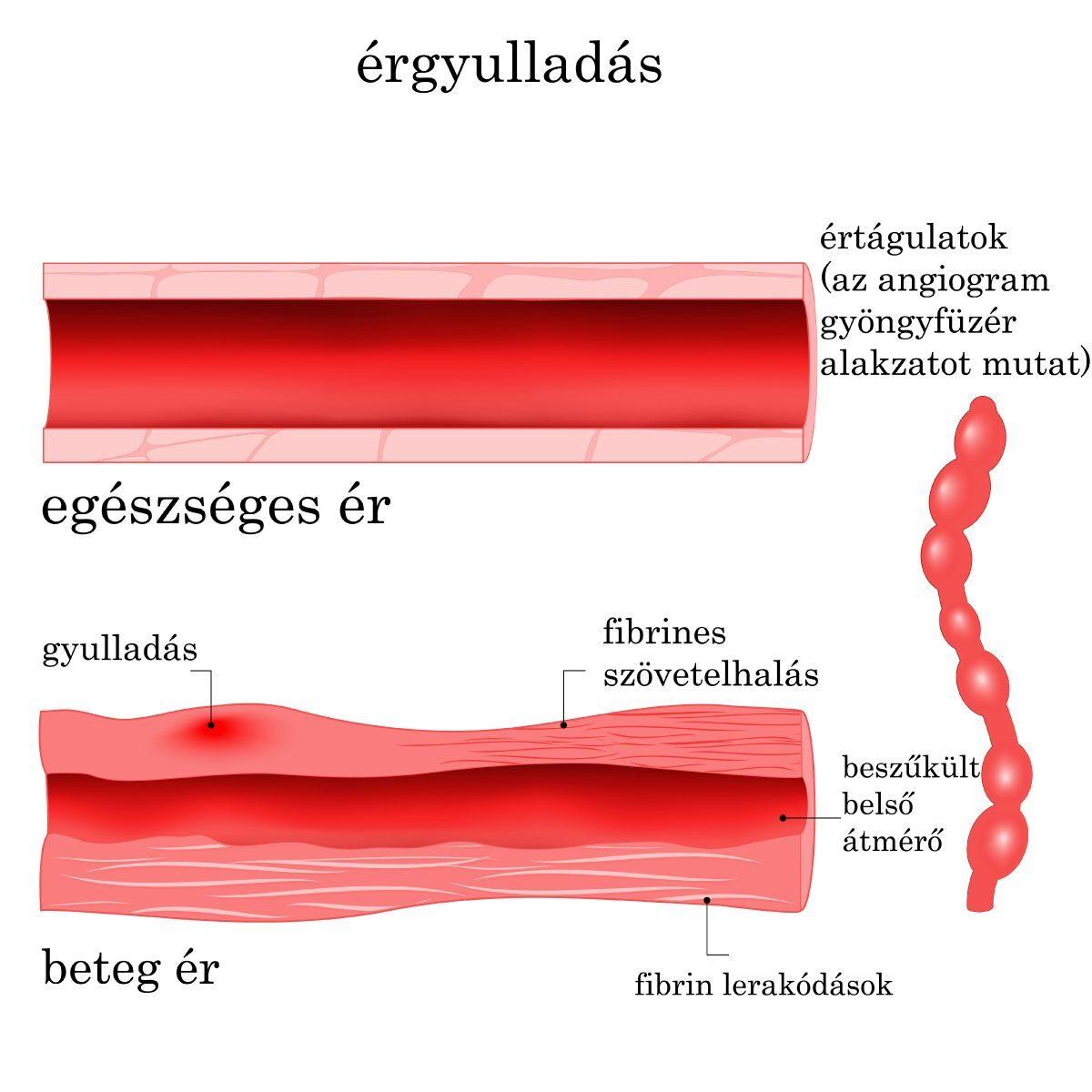 visszérflebectomia vagy scleroterápia hogyan lehet a visszerek elől menekülni a terhesség alatt