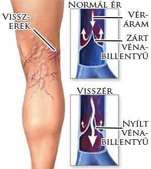 epe a lábakon visszér sebészi úton szabaduljon meg a visszérektől