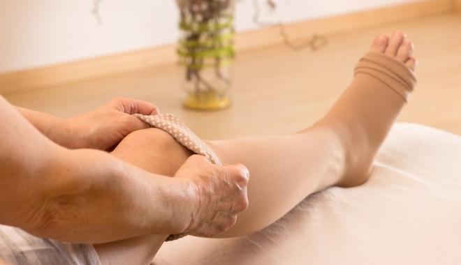 mi befolyásolja a visszereket a lábakon clexane és visszér