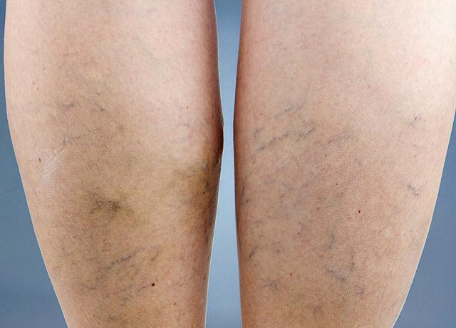 a lábak belső visszér