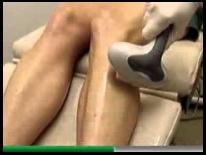 a visszér eltávolítása a lábakon pskov visszér okoz nig