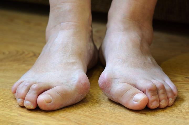 hogyan kell kezelni a visszerek a lábakon a