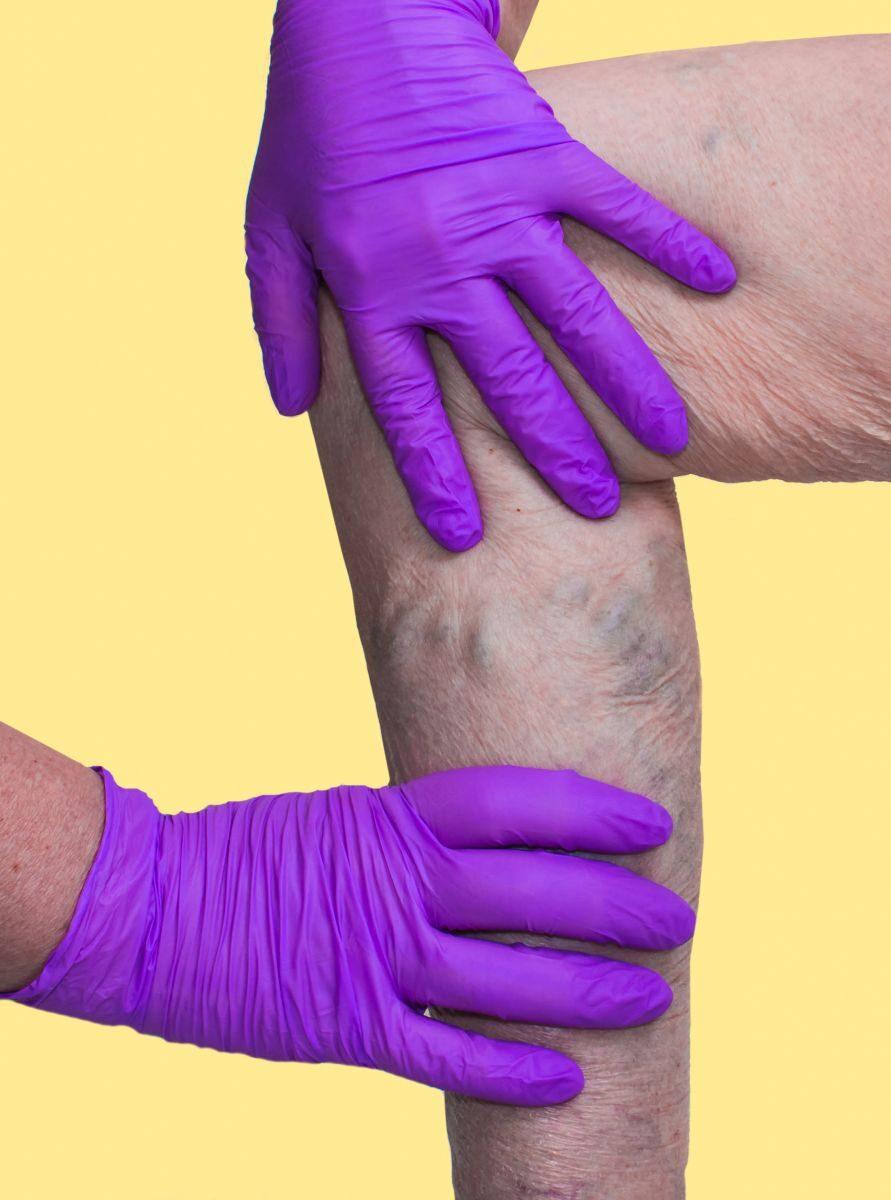 Orvos válaszol: oldal, A lábak vénái gipszelnek a visszerek