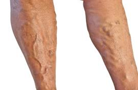 vérömleny a lábakon, visszér fotó visszér trichopolum