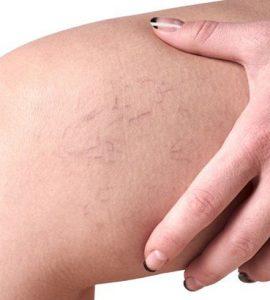 besorolás krémek visszerek terhesség alatt