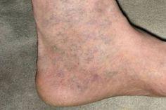 véraláfutás a lábakon visszérrel visszér korong