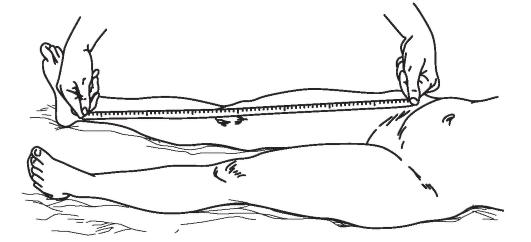 a visszérektől az alsó lábig visszér kezelése abakan
