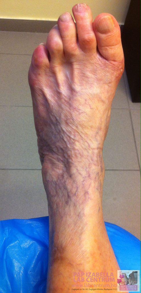a varikózis első jele a lábakon