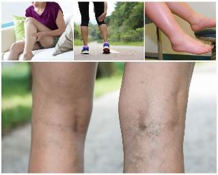 szimulátorok a visszér kezelésére hogyan lehet eltávolítani a duzzanatot a láb varikózisán