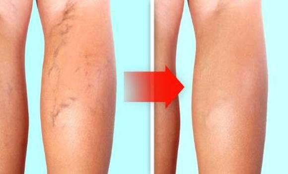 vitaminok a visszeres lábak számára