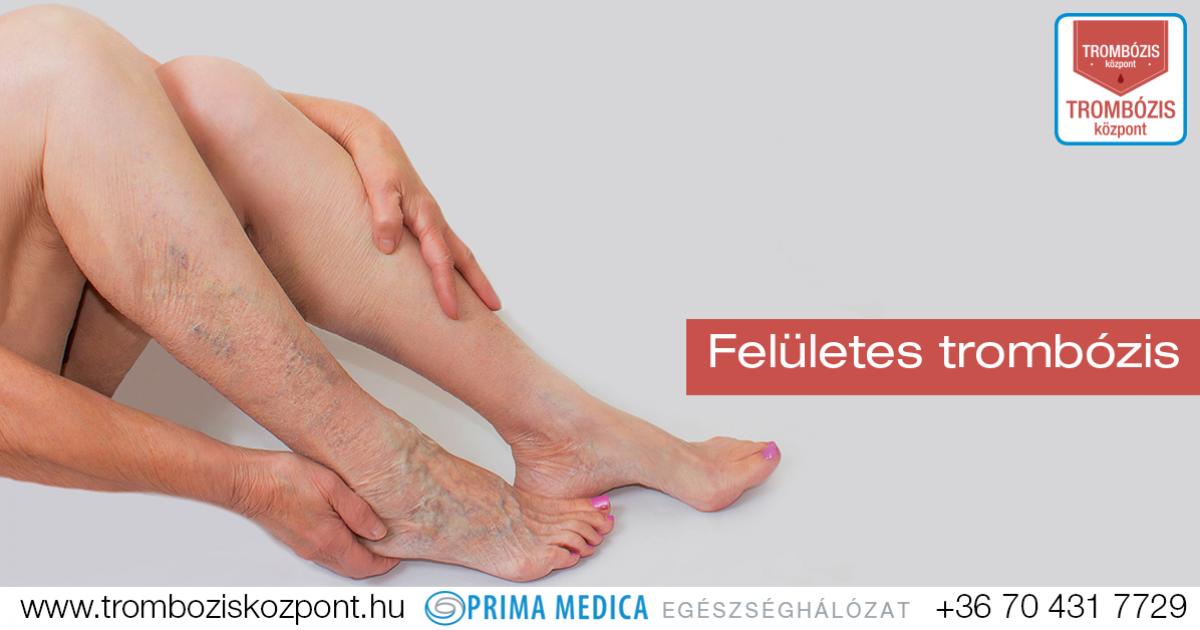 a lábak visszér trombus és a visszér elrejtőzött