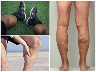 a visszér első tünetei a lábakon kezelés