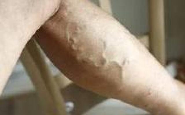 szteroidok és visszér gyógyulás visszér lézeres műtét után
