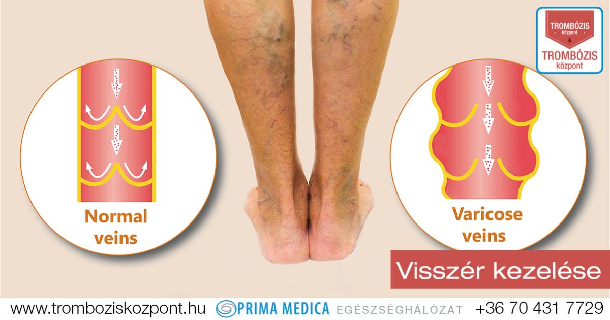 trombózis visszérrel a lábakon videotorna visszérből
