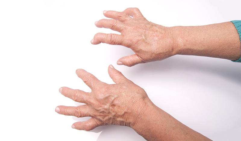 a láb fáj, ahol a varikózis