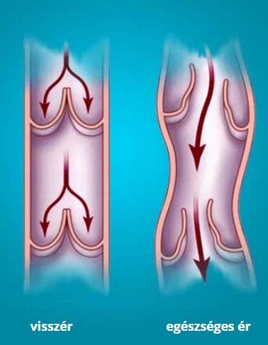 A láb kezdő visszérkezelésének kezelése