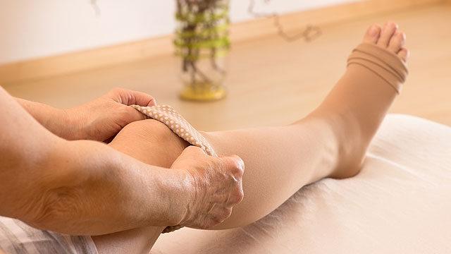 hogyan lehet megfelelő módon bekötözni a lába visszérrel