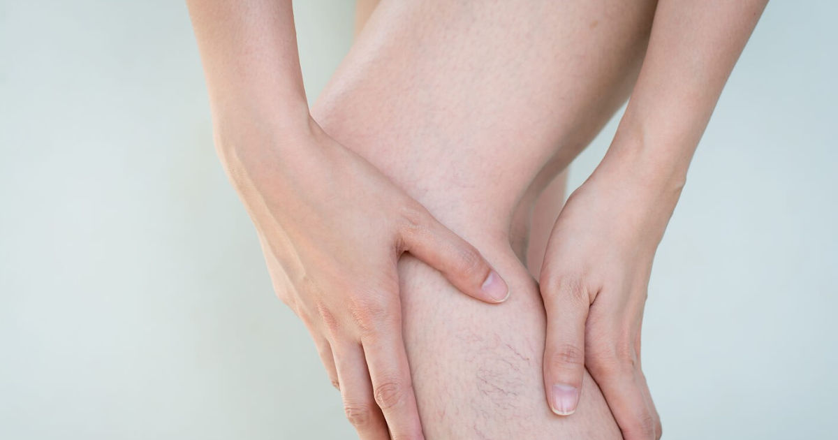 kompressziós kötés az alsó lábszáron visszerek esetén