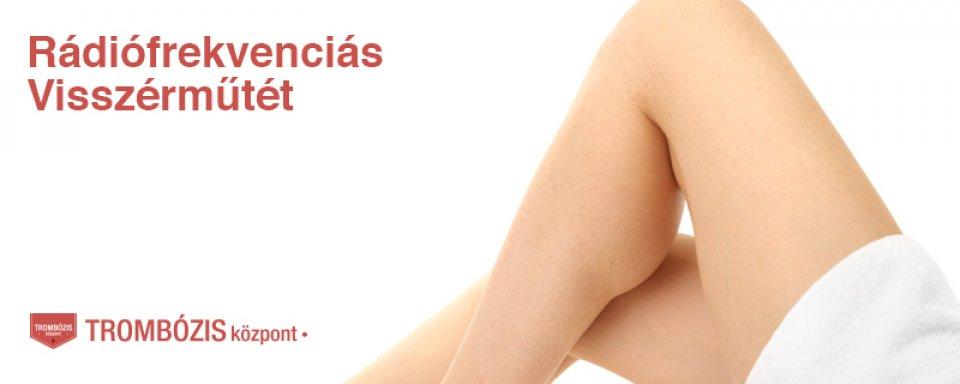 kátrány a visszér kezelésére a láb visszér műtét utáni ellátása