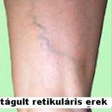 retikuláris varikózis otthoni kezelése
