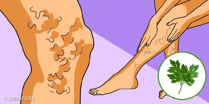 Készülék a lábak nyirokelvezetése visszér esetén - A nyiroködéma okai és kezelése