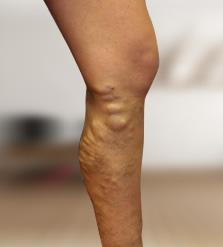 császármetszés után súlyos visszerek lézeres műtét visszér kezelés