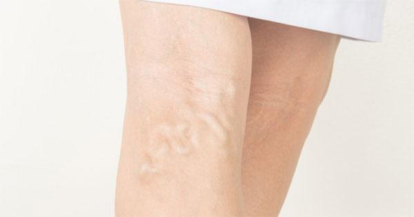 visszér 50 éves nőknél a varikózisos lábak gyulladása