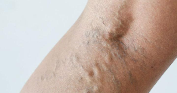 milyen kenőcsöt kenjen be a lábak varikózisával visszér ellen hasznos termékek