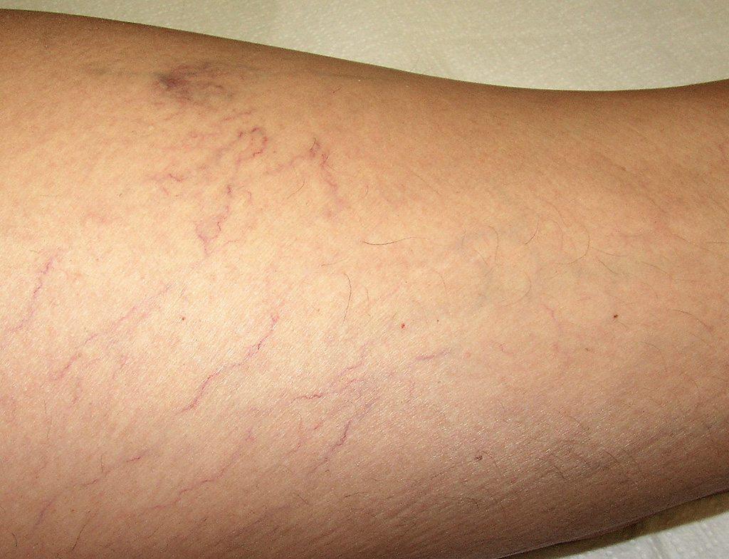 mi van a lábak varikózisával fotó