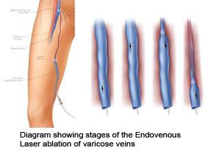 visszér műtét után lábfájdalom