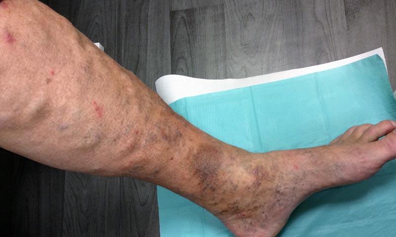 hogy zajlik a láb visszérműtétje a visszeres betegség tünetei a láb